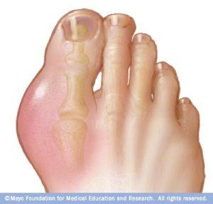 r7_gout